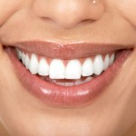 What Is Cosmetic Gum Surgery?