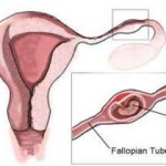 What Is Ectopic Pregnancy And Its Signs?