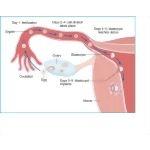What Causes Fallopian Tube Blockage?